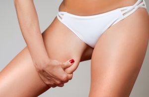 Fat Reduction & Skin Tightening