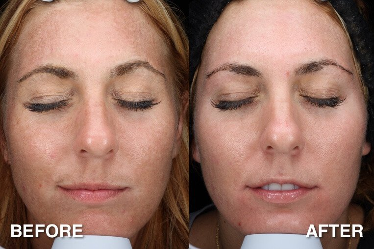 Get Your Face Ready for Fall | Southern Surgical Arts