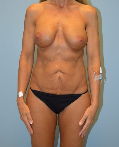 Liposuction Before & After Patient #658