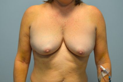 Breast Augmentation Before & After Patient #709