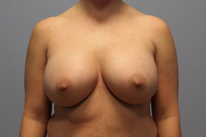 Breast Augmentation Before & After Patient #714