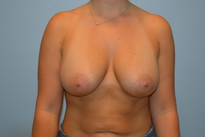 Breast Augmentation Before & After Patient #728
