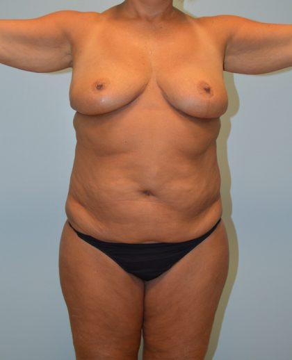 Liposuction Before & After Patient #675