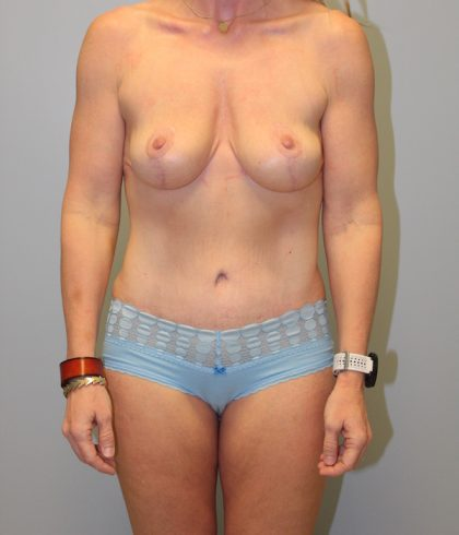 Liposuction Before & After Patient #681