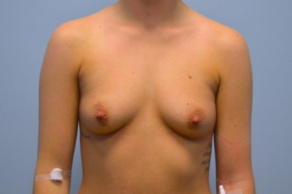 Breast Augmentation Before & After Patient #733