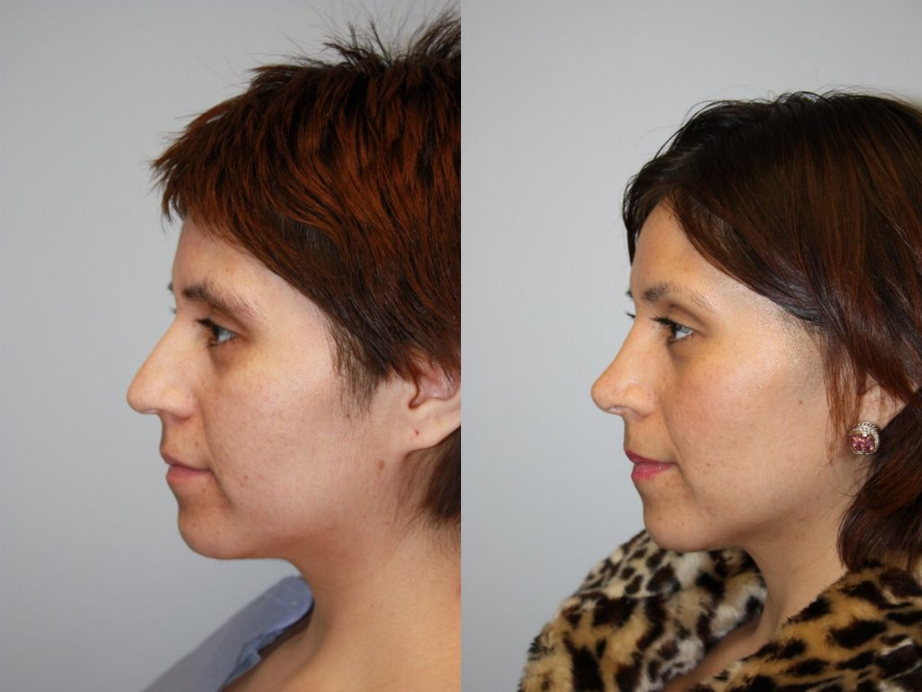 5 Reasons Our Patients Consider Rhinoplasty Ssa