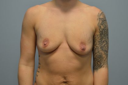 Breast Augmentation Before & After Patient #753