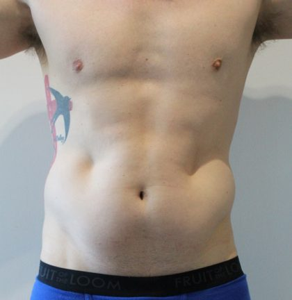 Fat Reduction Before & After Patient #2998