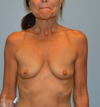 Breast Augmentation Before & After Patient #2819