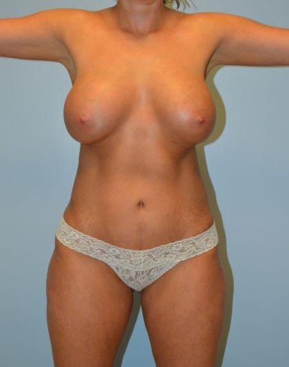 Brazilian Butt Lift Before & After Patient #2812