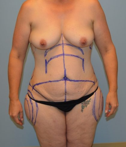 BodyTite Before & After Patient #2889