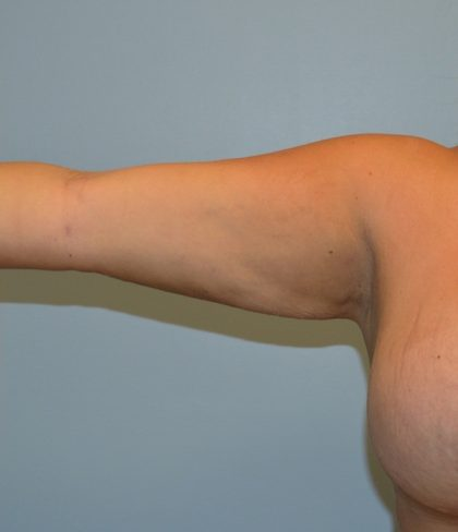 Arm Lift (Scarless Arm Lift) Before & After Patient #2890