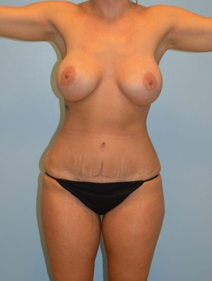 Breast Augmentation Before & After Patient #2984