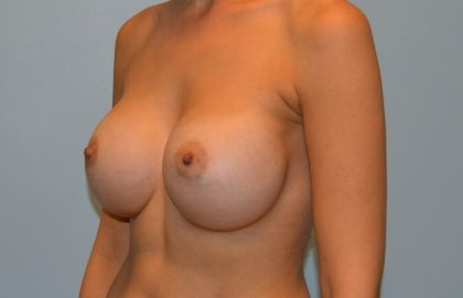 Breast Augmentation Before & After Patient #2841