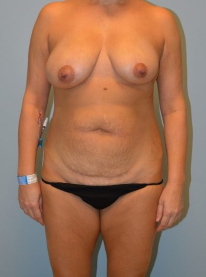 Breast Augmentation with Fat Transfer Before & After Patient #2985
