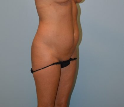 Tummy Tuck Before & After Patient #2855