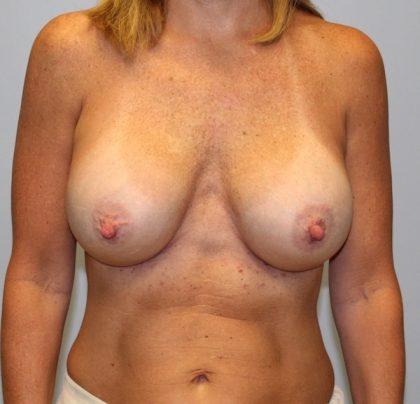 Corrective Breast Procedures Before & After Patient #2936