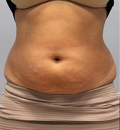 Fat Reduction Before & After Patient #3013