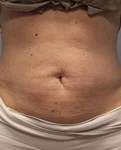 Fat Reduction (Non-Invasive) Before & After Patient #3016