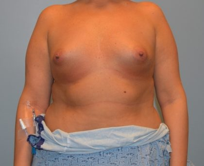 Breast Augmentation Before & After Patient #2912