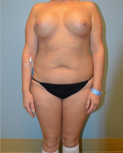 Liposuction Before & After Patient #2960