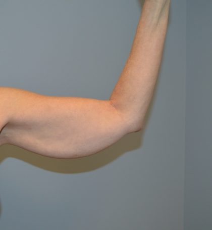 Arm Lift (Scarless Arm Lift) Before & After Patient #2879