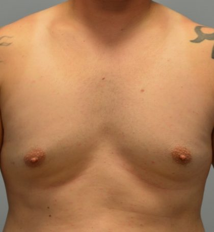 Male Breast (Gynecomastia) Before & After Patient #2961