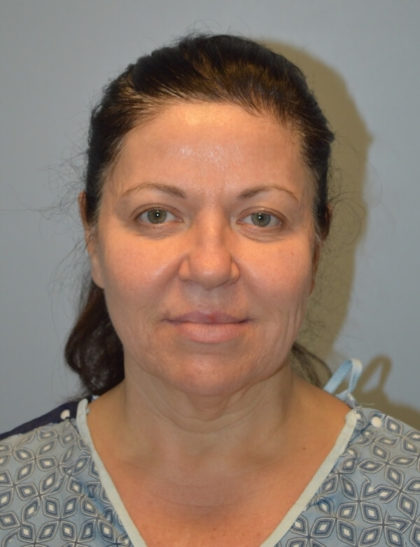 Blepharoplasty Before & After Patient #3144