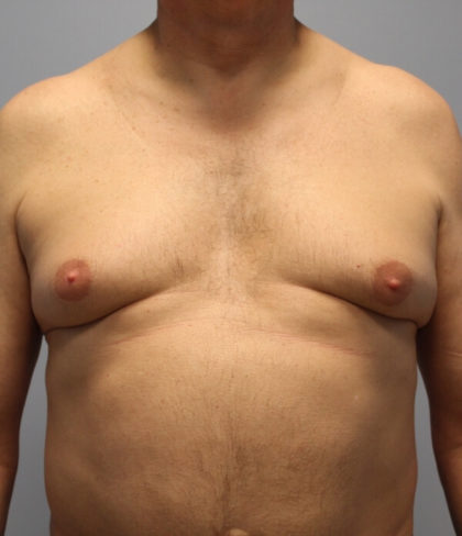 Male Breast (Gynecomastia) Before & After Patient #3156