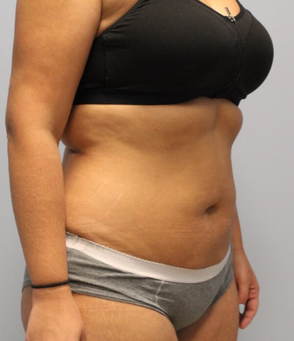 Fat Reduction (Non-Invasive) Before & After Patient #3175