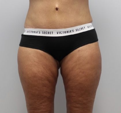 Liposuction Before & After Patient #3220