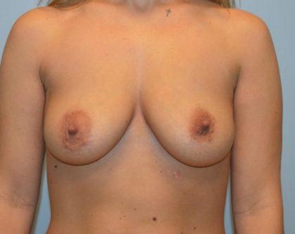 BodyTite (Scarless Skin Tightening) Before & After Patient #3367