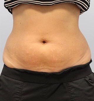Fat Reduction (Non-Invasive) Before & After Patient #3356
