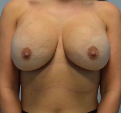 BodyTite (Scarless Skin Tightening) Before & After Patient #3362