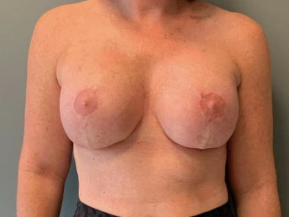 Breast Lift Before & After Patient #3765