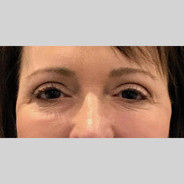 Blepharoplasty Before & After Patient #3839