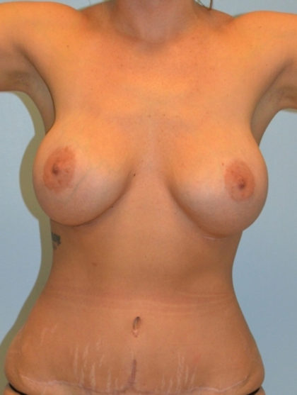 Breast Augmentation Before & After Patient #3643