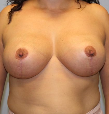 Breast Lift Before & After Patient #3596