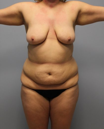 Tummy Tuck Before & After Patient #3615