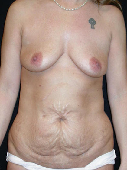 High Definition Mommy Makeover Before & After Patient #3847