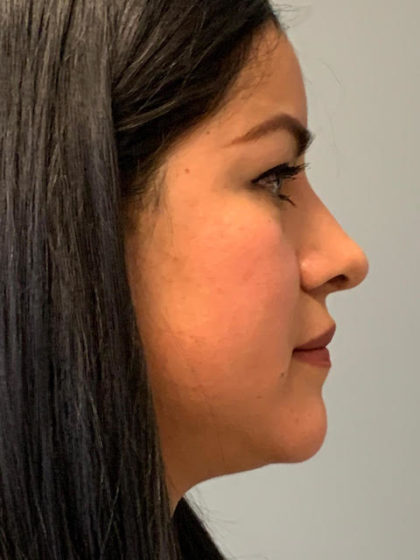 Rhinoplasty Before & After Patient #3793