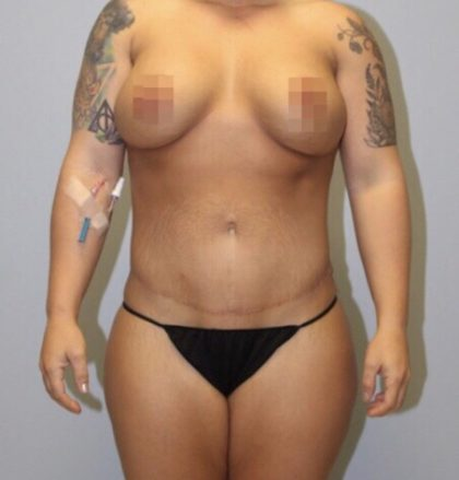 High Definition Mommy Makeover Before & After Patient #3962
