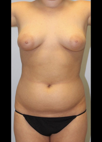 Liposuction Before & After Patient #3959