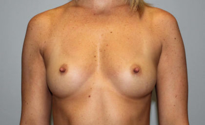 Breast Augmentation Before & After Patient #4066