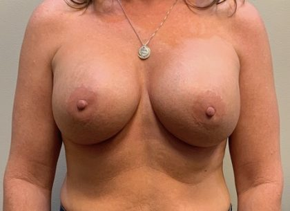 Breast Augmentation Before & After Patient #4044
