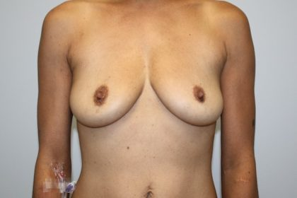 Breast Augmentation Before & After Patient #4051