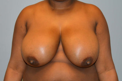 Breast Reduction Before & After Patient #4014