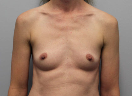 Breast Augmentation Before & After Patient #4027
