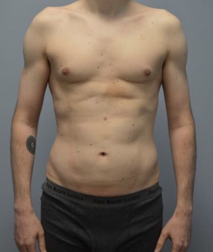 High Definition Men Before & After Patient #3927