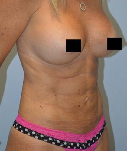 High Definition Mommy Makeover Before & After Patient #3987